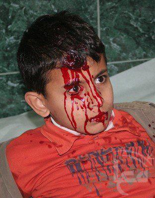 الطفل وافي شوقي عسلية مصاب من طائرات الاحتلال